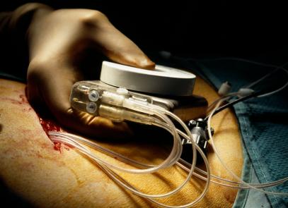 Herzschrittmacher mit Platin