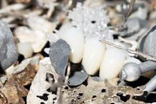 Zahngold und Dentalgold Ratgeber